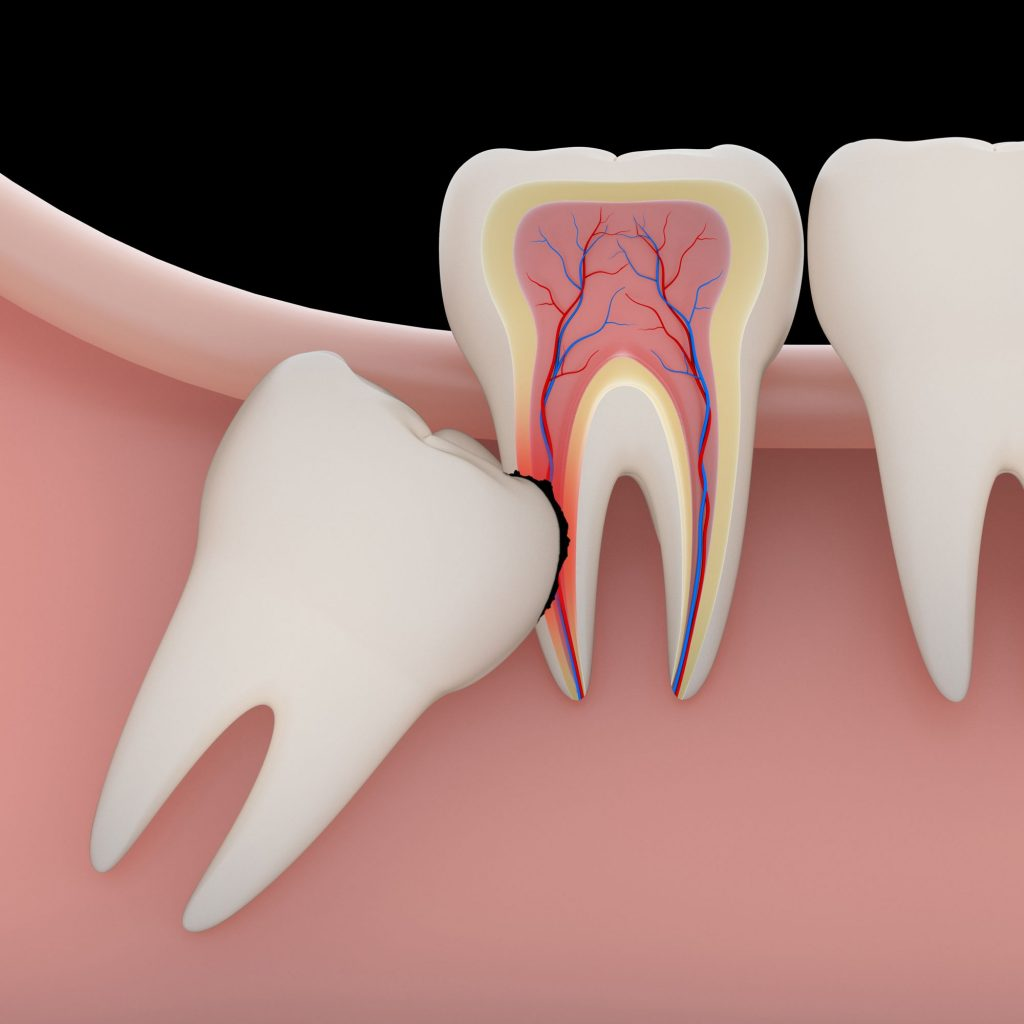 wisdom tooth extraction in Singapore